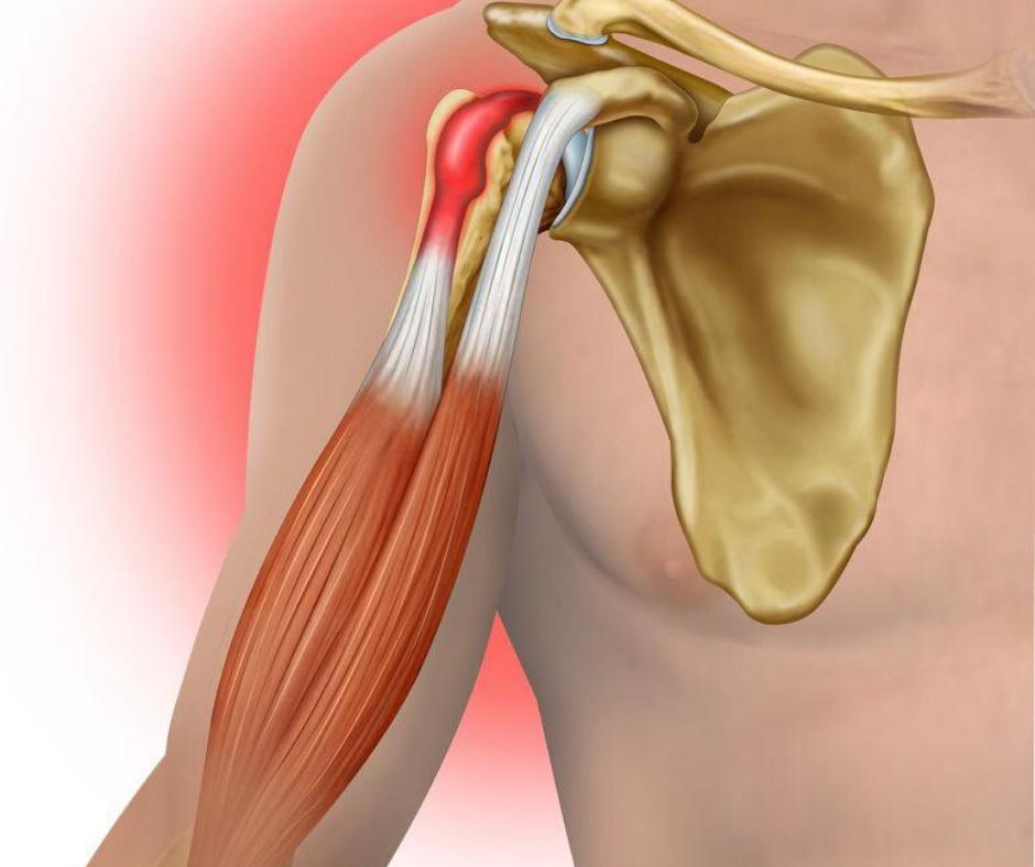 PRP per a la regeneració de teixits musculars i ossis