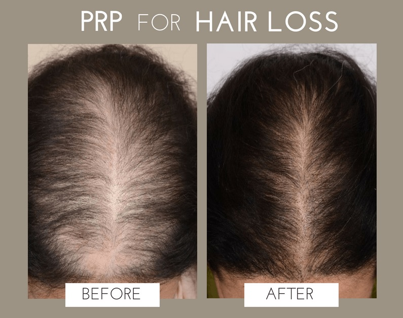 PRP pour la perte de cheveux