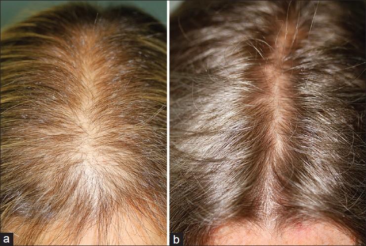 Le finastéride contre l'alopécie androgénétique chez l'homme