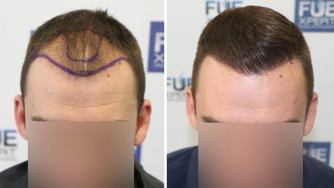 Greffe de cheveux (FUE)