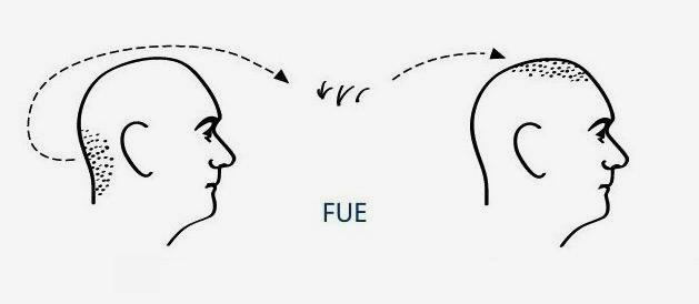 phases de la greffe de cheveux FUE