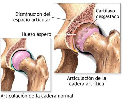 artrosis de la cadera